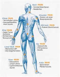 Arthritis Pain Chart